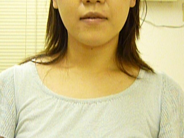 江東区 N A 様 34歳