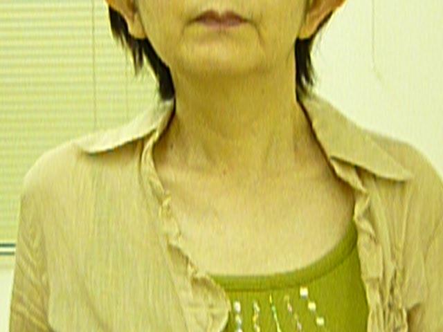 水戸市 K 美子 様 58歳